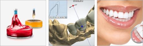 Имплантация зубов системой BTI