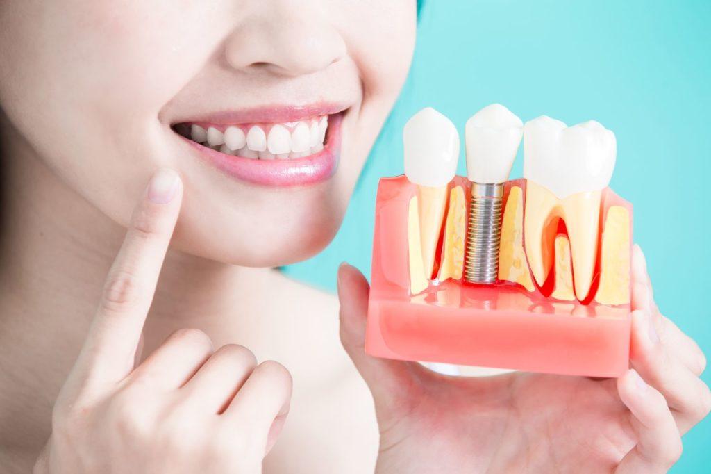 Если все зубные имплантаты одинаковы, за что платят по «штуке» за единицу?